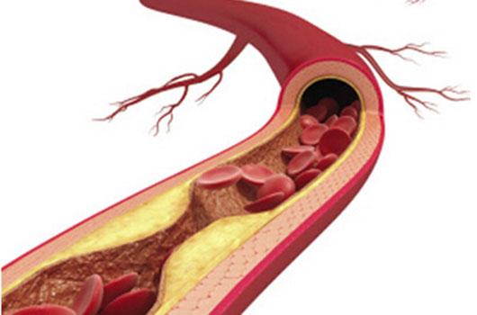 血管老人就老 四种营养保血管年轻