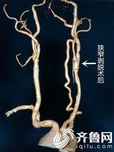 颈动脉狭窄内膜剥脱术后CTA照片