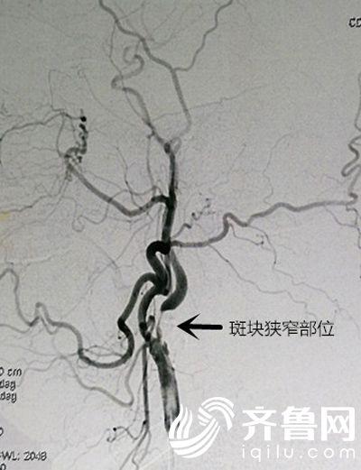 颈动脉狭窄术前照片