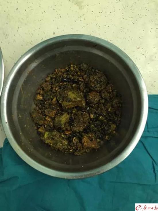 女子腹痛40多年不管 体内长出1斤石头