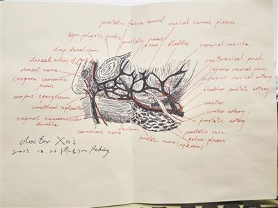 医生手绘图向病人解释病情:让患者更加理解医生