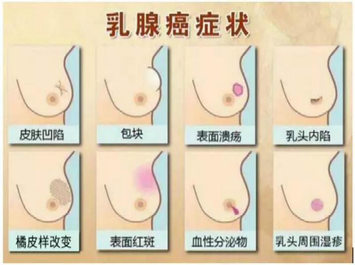 """直面这些""""胸险"""",警惕乳腺癌"""