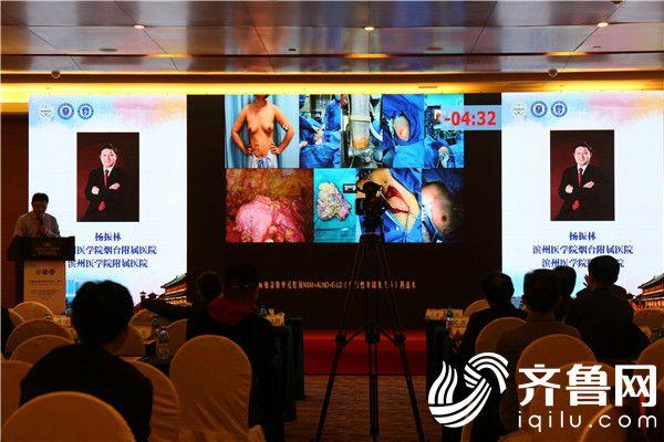 滨医烟台附院成功举办乳腺外科学术盛宴——环渤海乳腺外科高峰论坛
