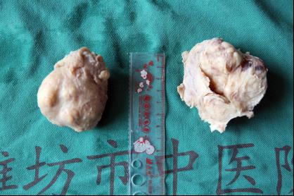 切除后的巨型前列腺标本