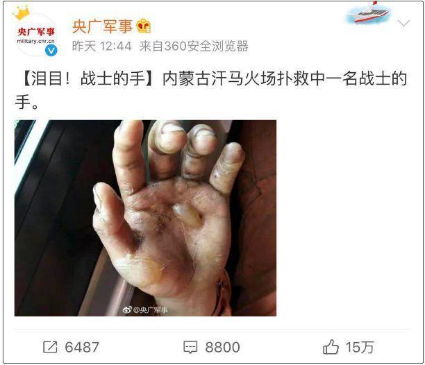 这只手的照片,让15万网友点赞,无数人心疼…