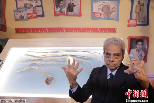 留了66年、总长超9米:印度男子终于剪掉指甲