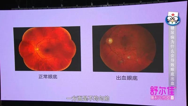 有一种疾病,会悄悄夺走患者的视力