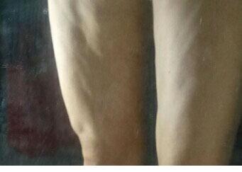 女子抽脂后腿部凹凸不平 您还敢吗?
