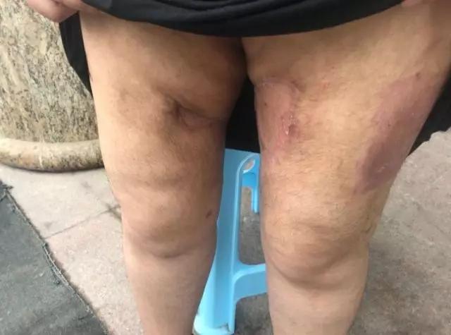 济南女子做减肥手术后无法行走!皮肤大面积坏死