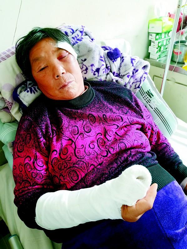 63岁环卫工被撞伤,肇事者你在哪里?