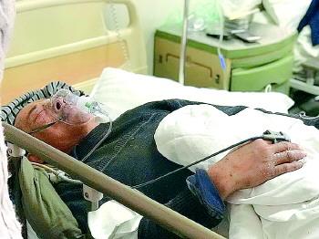 惨!济南一男子给雕塑做防潮,突然炸裂致其断4根肋骨