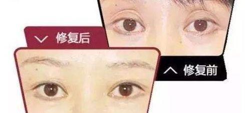 但凡有这样的双眼皮,很多人都应该画个圈圈诅咒医生了,这个锅医生是甩不掉的。 拯救方案:按照正常宽度重新设计,将原本的切口随多余的皮肤一起切除。但是医生要和病人沟通好切除的分寸,有可能因为两次切除皮肤量大影响眼睛的闭合。 双眼皮不对称 两边双眼皮不一样,导致大小眼等情况,我们甚至不用对比它违背了哪些重睑的医学标准,直接就可以判定为失!