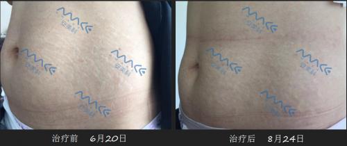 揭秘!妊娠纹修复专业品牌安美科为何受到孕产女性偏爱