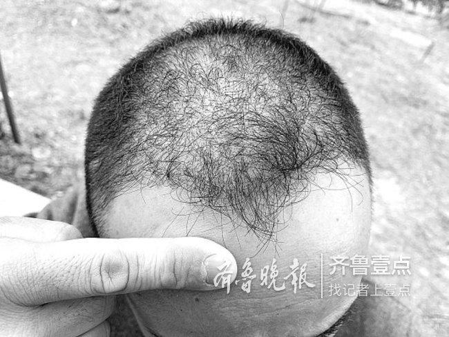 济南男子花一万五植发却患上毛囊炎 店家:头发还在长