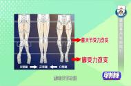 腿型不好看,揭示健康有隱患