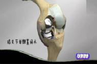 60歲老人換完膝關節接著就能下地,怎么做到的?