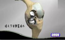 60岁老人换完膝关节接着就能下地,怎么做到的?