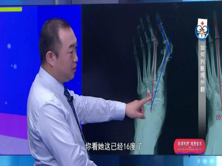 腳趾頭歪歪也是一種病