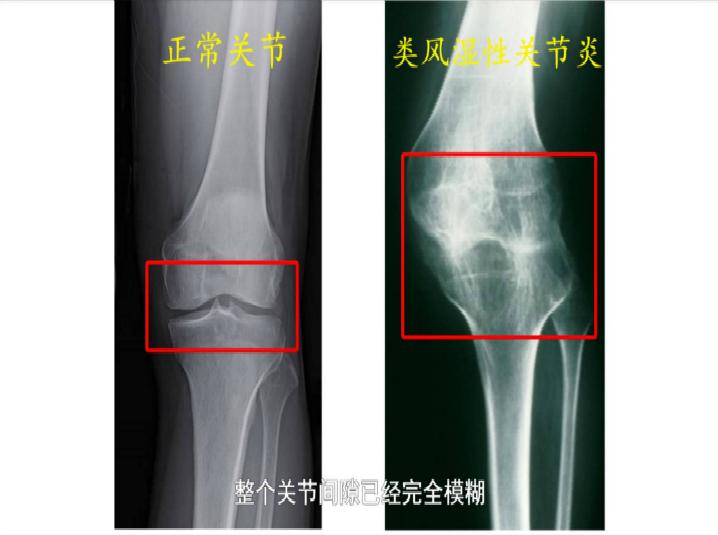 """患者约500万!手指脚趾疼痛变形、会致残,当心这个""""不死的癌症"""""""