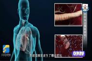 慢阻肺,最陌生的常见病
