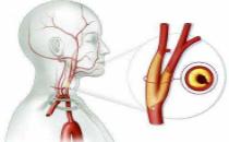 人體最怕堵的一根血管,半數中風與它有關