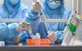 三级综合医院应能独立检测新冠病毒