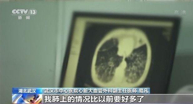 《【万和城账号注册】新冠肺炎治愈患者:我们一切都很好》
