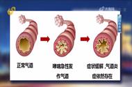 如何区别感冒咳嗽和哮喘?