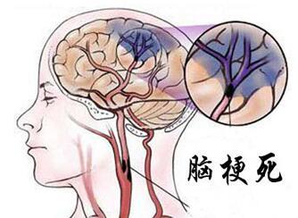 冬季脑血栓的防与治