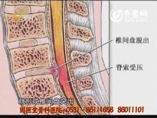 如何治疗腰椎间盘突出
