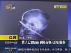 江苏:男子工地坠落 钢筋从鼻孔穿到颧骨