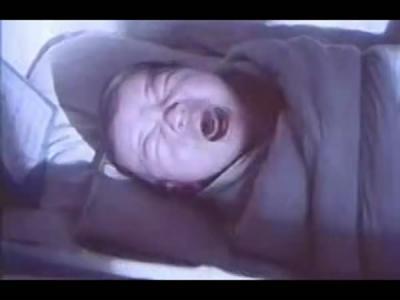 男孩患猫叫综合征 出生时哭声像猫叫