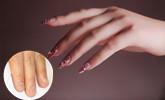 女孩美甲竟被传染灰指甲 专家教您如何鉴别和预防