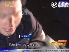 济南:男子酒后摔伤 脸上满是血痕