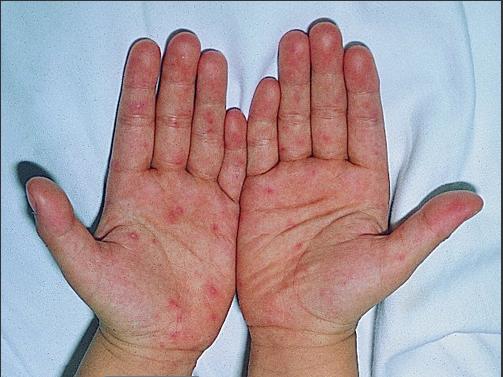 小儿手足口病症状有哪些