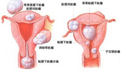 痛经极能是妇科疾病的先兆