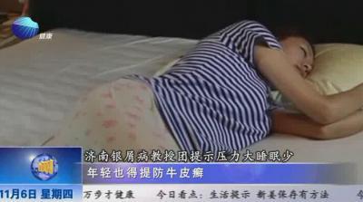 山东健康新闻20141106期:济南银屑病教授团提示压力大睡眠少 年轻也得提防牛皮癣