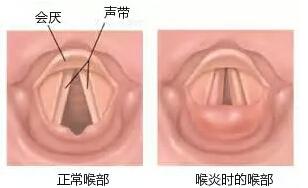 不可小视的儿科急症——急性喉炎