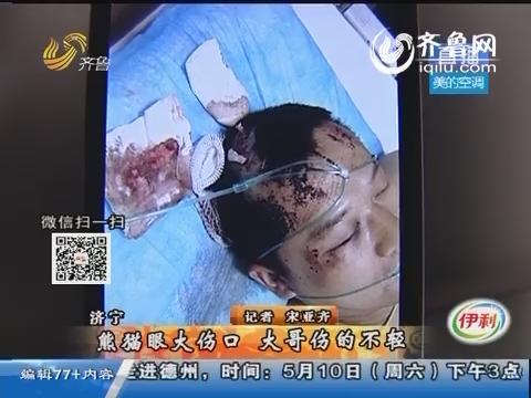 济宁:熊猫眼大伤口 大哥伤的不轻