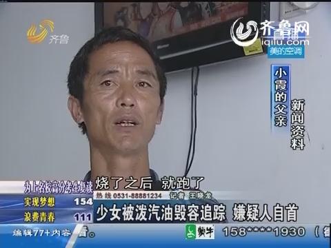 博兴:少女被泼汽油毁容追踪 嫌疑人自首