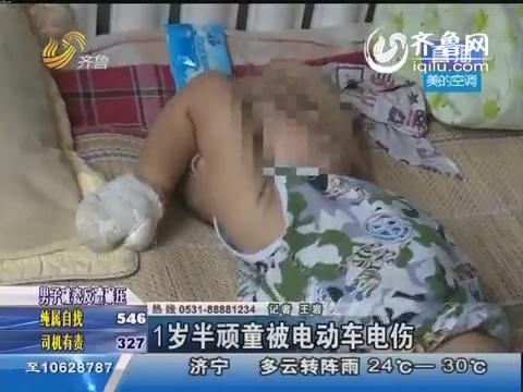 莱芜:1岁半顽童被电动车电伤