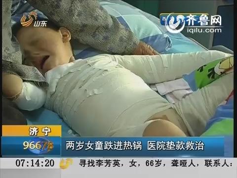 济宁:两岁女娃跌进热锅 医院垫款救治