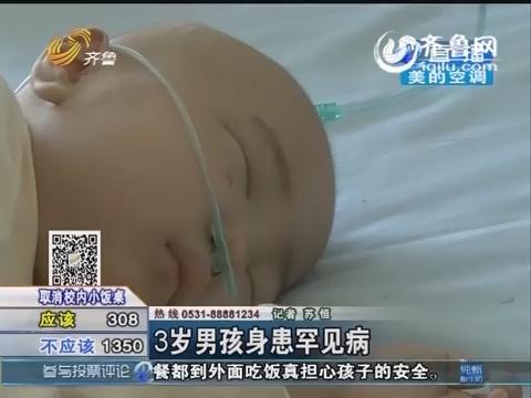 菏泽:3岁男孩身患罕见病