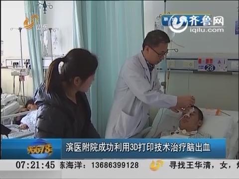 医学新突破:滨医附院成功利用3D打印技术治疗脑出血
