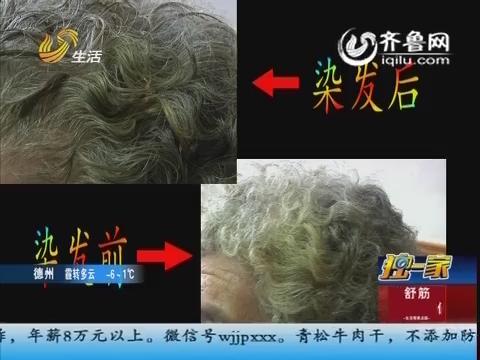 独一家:土豆皮能染头发 是真的吗?